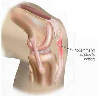 Quel Anti-douleur pour une tendinite ?